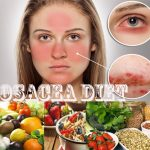 Rosacea Diet – What You Must Eat & Avoid to Recover