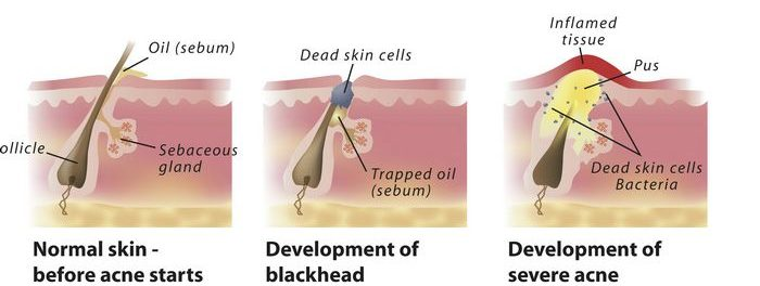 acne formation on skin excess oil dead skin diagram