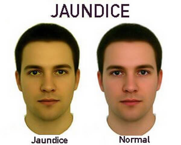 Jaundice-symptoms