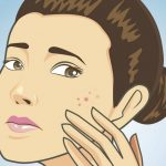 dont touch face avoid touching acne