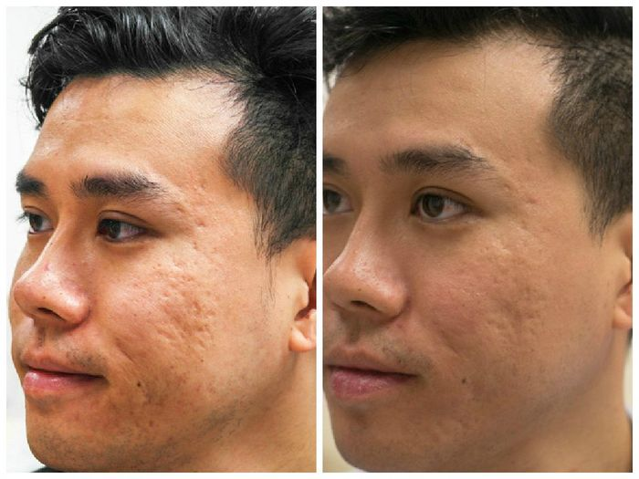 Acne Scar Laser Resurfacing Results Before After Health Love