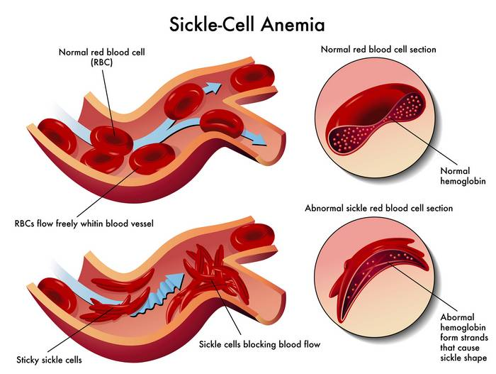 Sickle Cell Anemia_causes of jaundice