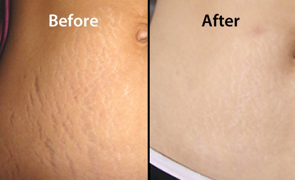 Stretch marks after microdermabrasion