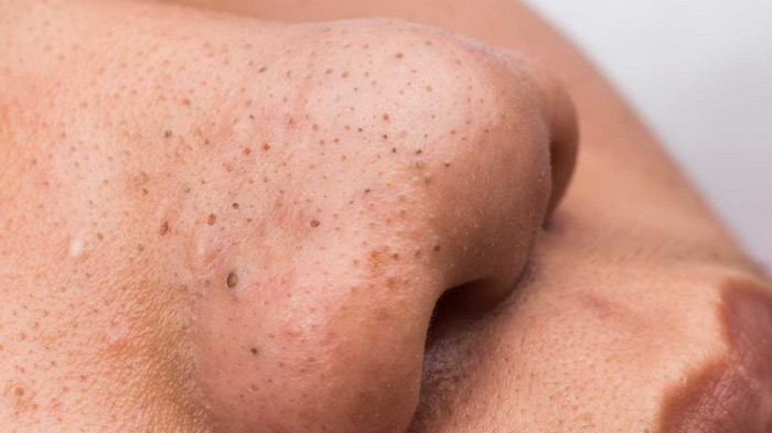 Types of Acne- Blackheads