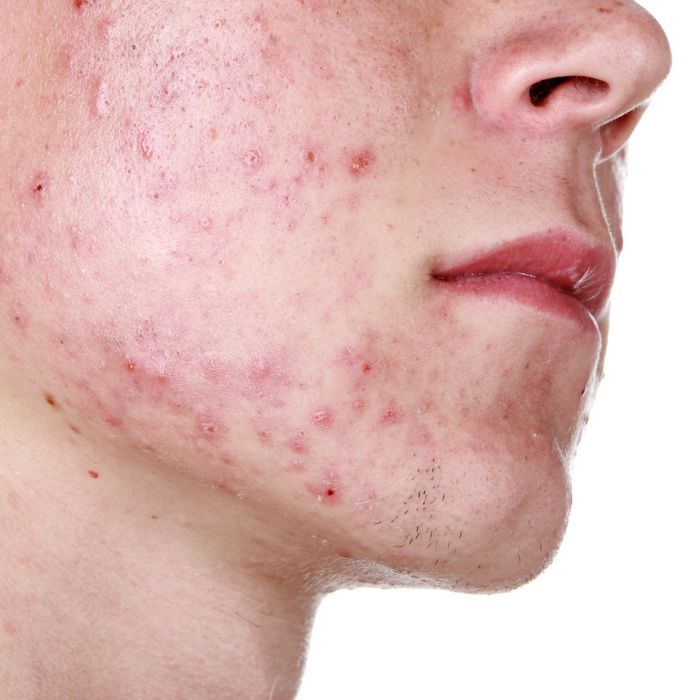 Types of Acne- Inflammatory Acne