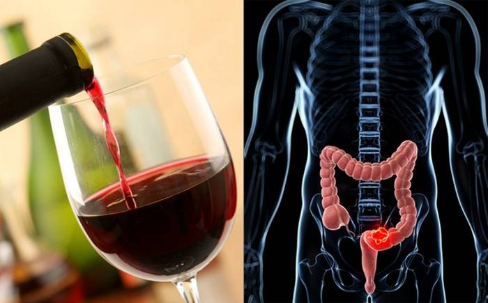 colon cancer prevention alcohol