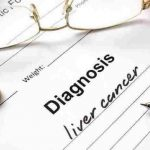 Symptoms of Liver Cancer – Causes and Treatments
