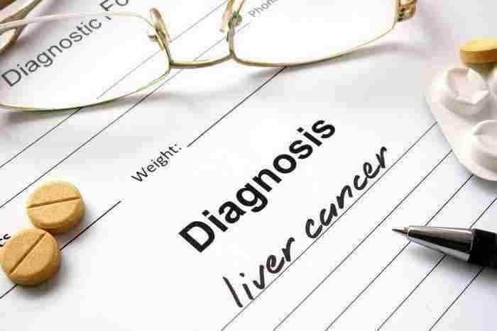 diagnosis of liver cancer