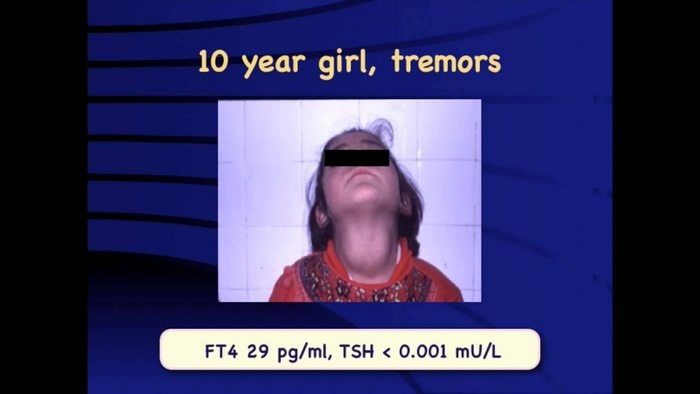 hyperthyroidism in children and clinical features of hyperthyroidism