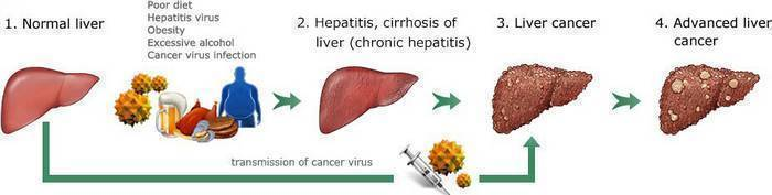 liver cancer stages