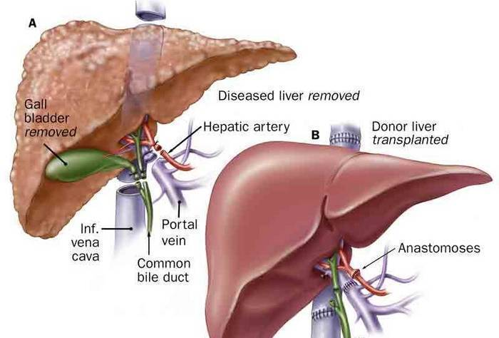 liver transplant-treatment of liver cancer