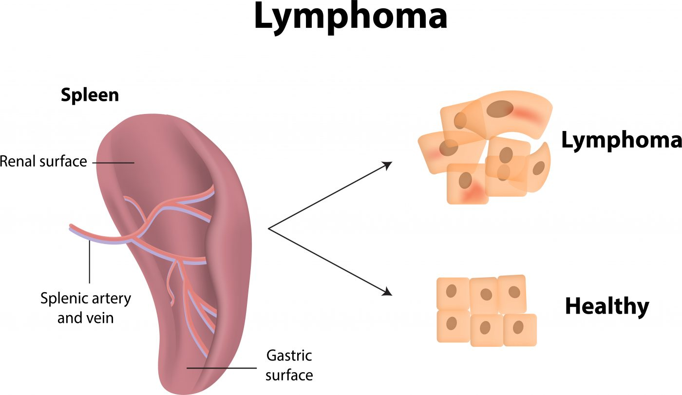 lymphoma-types of cancer