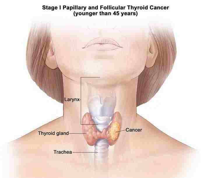 papillary and follicular thyroid cancer symptoms and causes