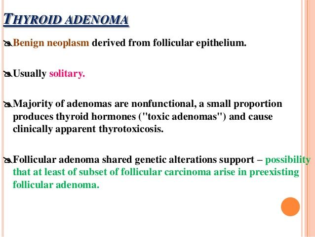 Thyroid Adenoma Causes Symptoms Treatment Surgery Healthlove