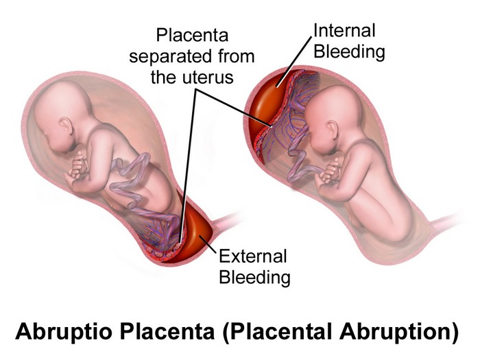 abruption placentae- complication of thyroid in pregnancy