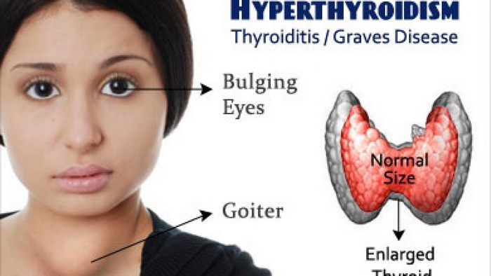 Hyperthyroidism in thyroid disease