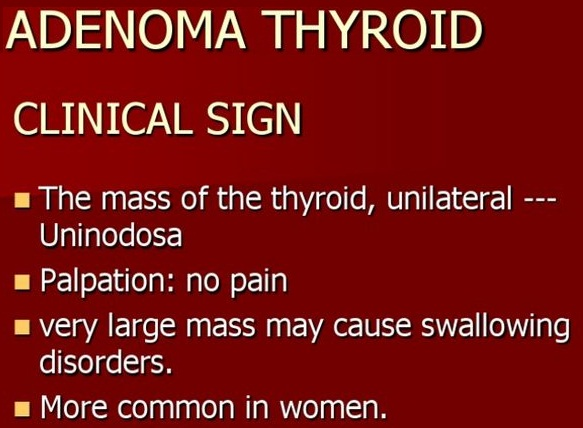 symptoms-of-thyroid-adenoma and clinical signs for prevention of thyroid symptoms in men with diet and treatment