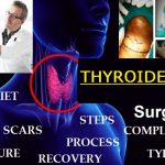 thyroidectomy surgery procedure complications diet scars