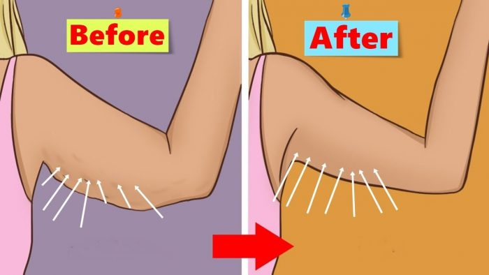 tighten loose skin after weight loss-causes