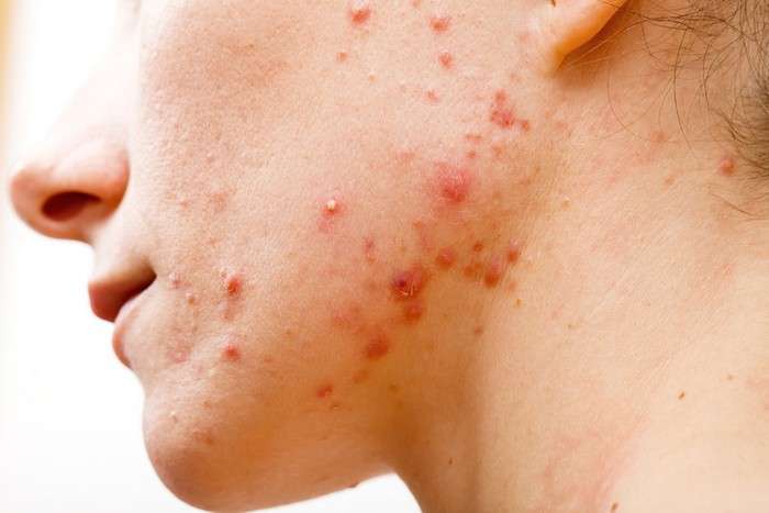 Acne-infection-and-inflammation-side-effects