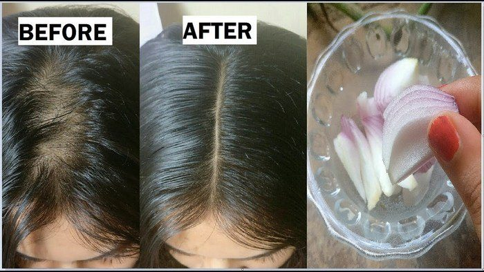 hair with homemade onion hair oil-before and after