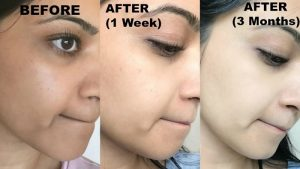 Reduce Discoloration With Mederma Pm Intensive Overnight Scar